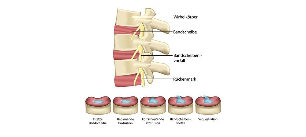 Bandscheibenprotrusion