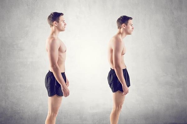 Newsletter Rückenschmerzen Krummer Rücken